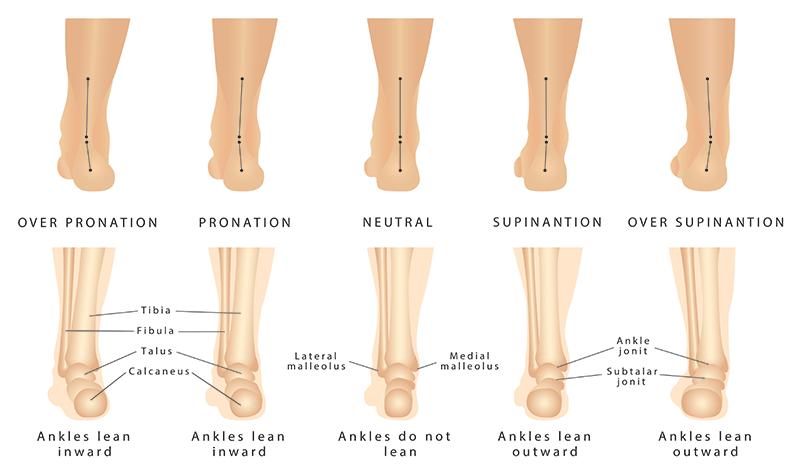 Deformacije stopala
