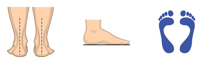 Normalen stopalni lok