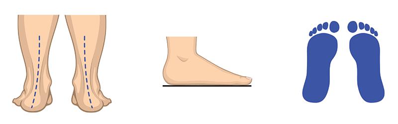 Raven stopalni lok (pronacija)
