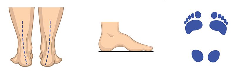 Visok stopalni lok (supinacija)