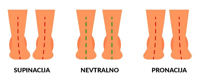 Supinacija, nevtralno stopalo, pronacija